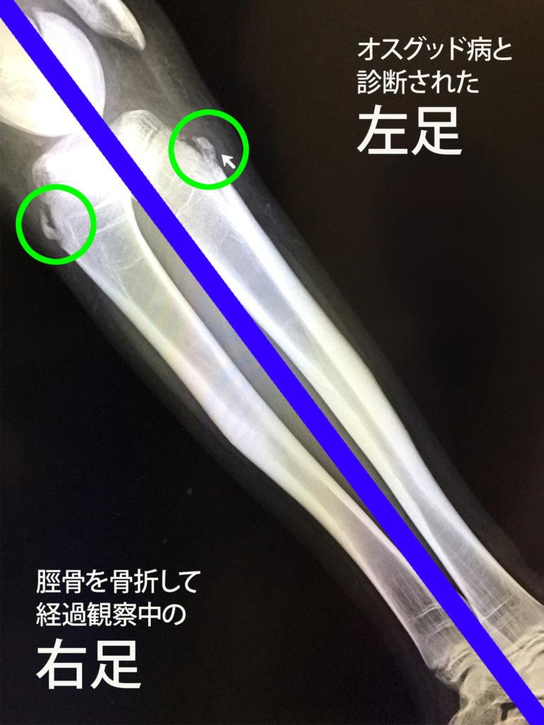 オスグッド病の膝とオスグッド病ではない膝のレントゲン写真