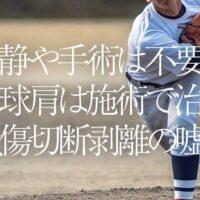 安静や手術は不要‼ 野球肩は施術で治る。 損傷切断剥離の嘘!