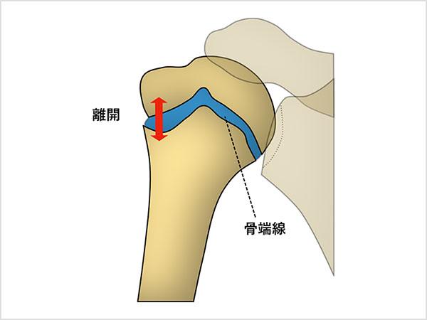 上腕骨骨端線障害(リトルリーグショルダー)