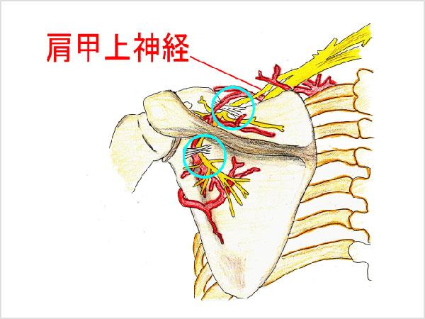 肩甲上神経損傷