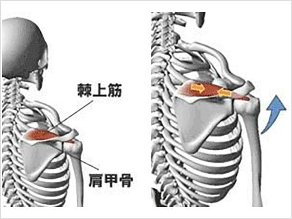 動揺性肩関節症(ルーズショルダー)