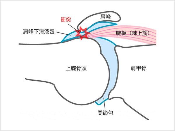 肩関節インピンジメント症候群