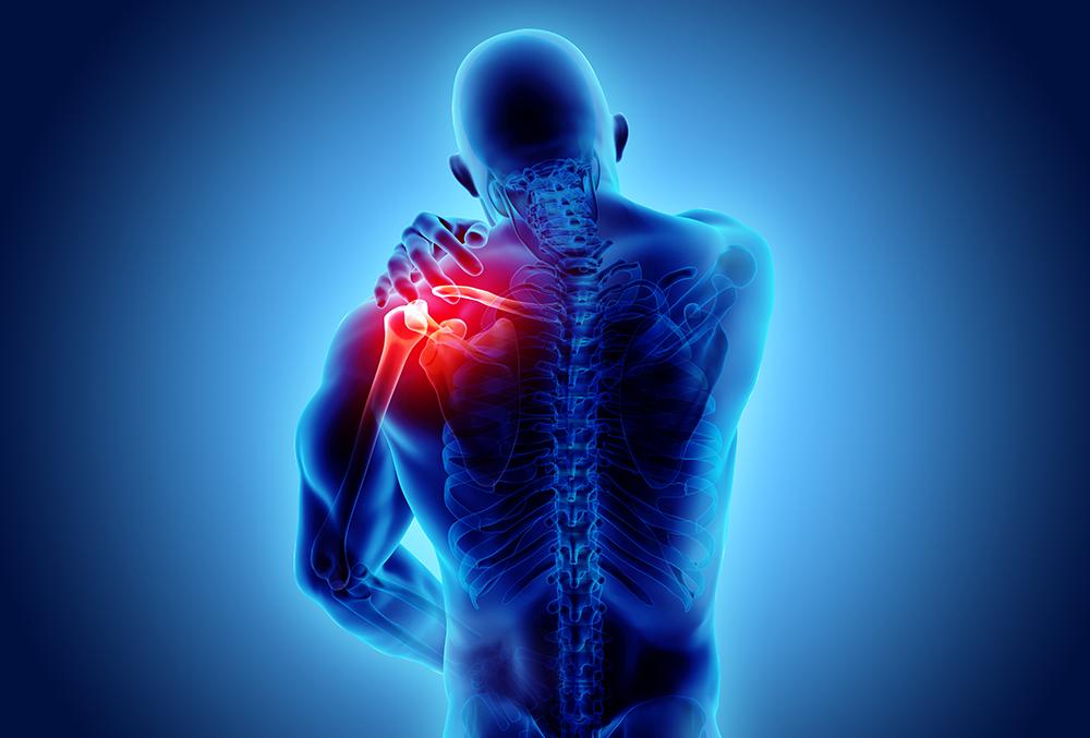 野球肩で肩を痛がっている人のレントゲンイメージ